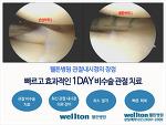 관절수술이 불가피한 전방십자인대파열 무릎수술