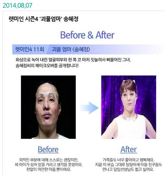 인간극장 참 예쁜 당신 렛미인 시즌4 괴물엄마 송혜정