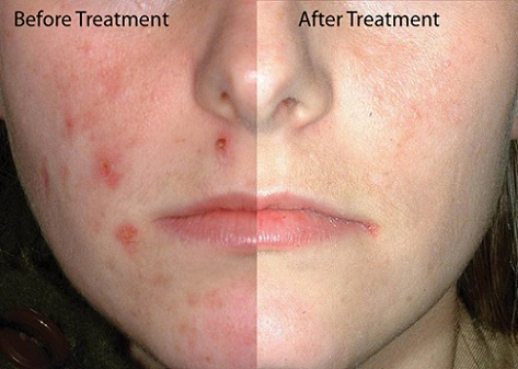 acne-face after before