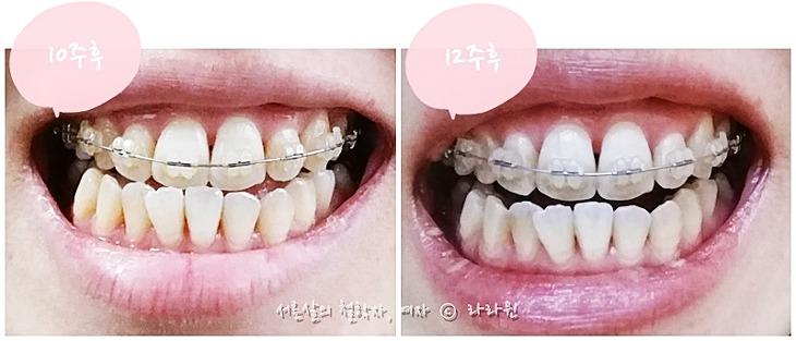치아교정, 부정교합 치아교정, 치아교정 후기, 치아교정 과정, 치아교정 변화, 치아교정 장점, 치아교정 단점,