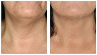 neck wrinkle